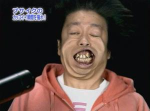 日村勇紀 歯