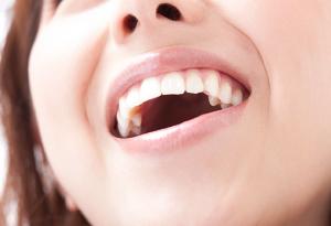 歯科ホワイトニング トラブル